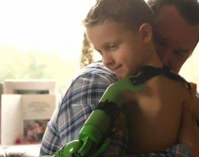 Un brazo con tecnología robótica le deja abrazar por vez primera a su hermano